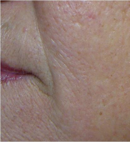 Huidverbetering voor novaderm huidtherapie oedeemtherapie - Huisverbetering m ...
