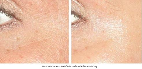 voor-en-na-nano-dermabrasie